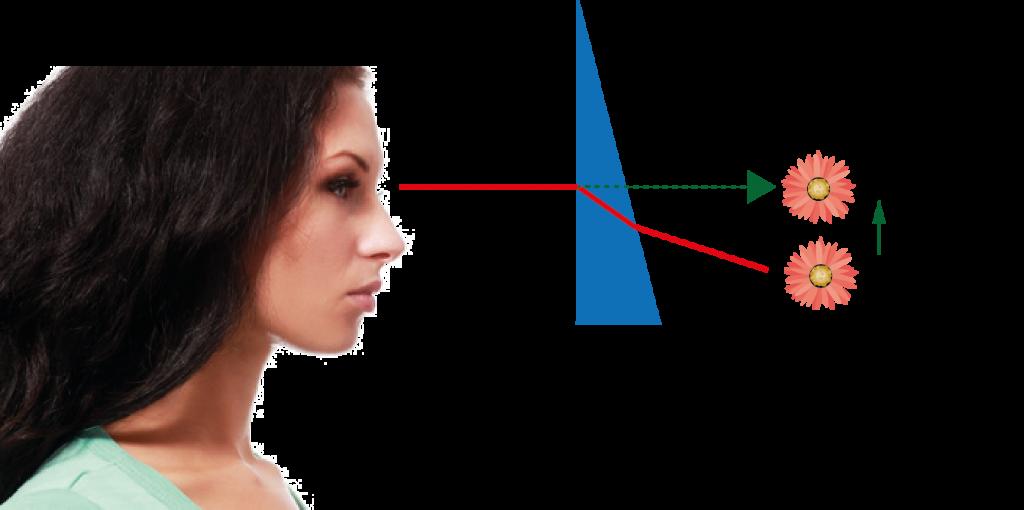 La utilidad de los prismas posturales