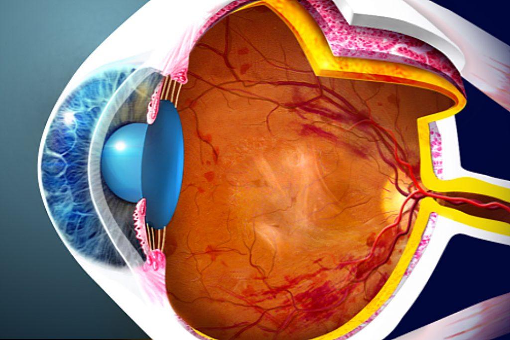 Jornada de prevención de la retinopatia diabética
