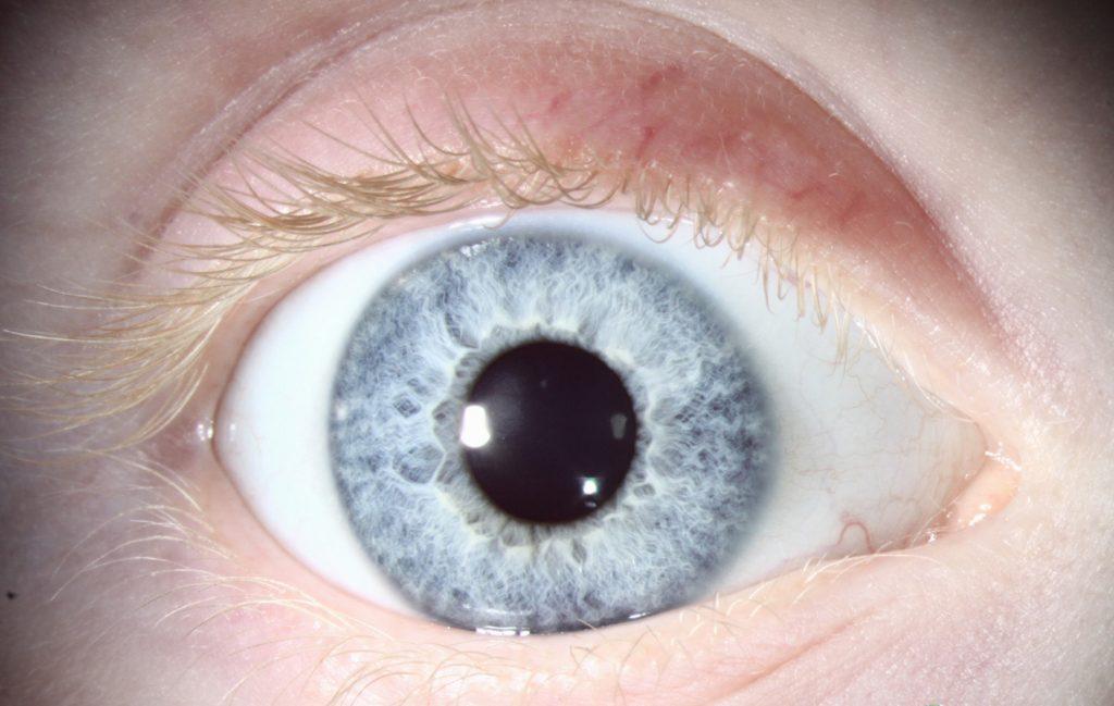 Problemas de sueño y sequedad ocular. ¿Existe una relación?